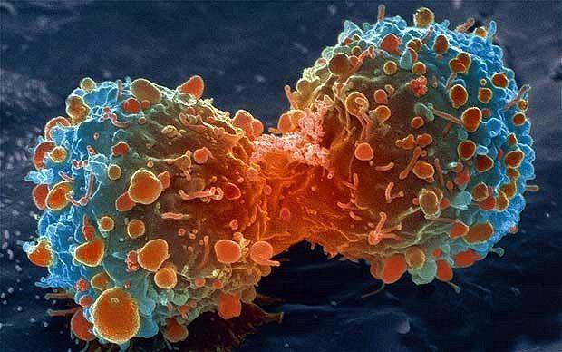 De ce unii oameni nu se imbolnavesc de cancer?
